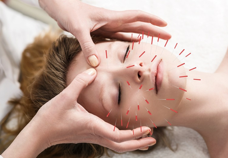 Acupuncture : une alternative naturelle contre l'acné - Heyme